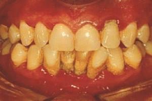 napredovana parodontalna bolezen