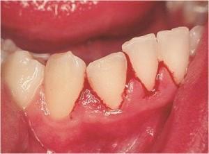 vnetje dlesni s krvavitvijo